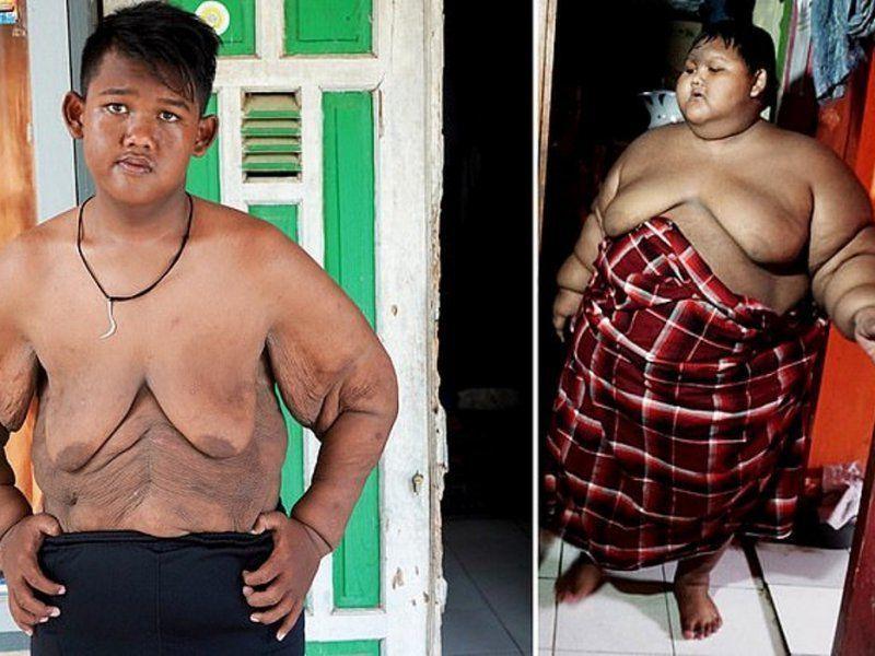 Похудеть Мальчик 12 Лет. Как похудеть детям 12 лет: особенности питания, оптимальные физнагрузки для подростка